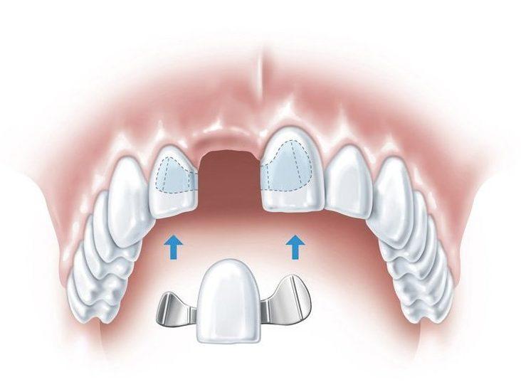 protetyka gdynia most stomatologiczny