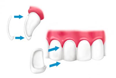 protetyka stomatologiczna licówka stomatologiczna