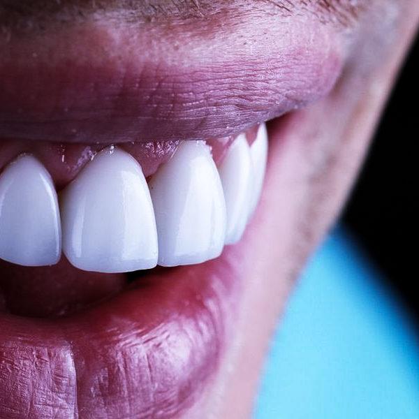 licówki gdynia protetyka uśmiech cmimed