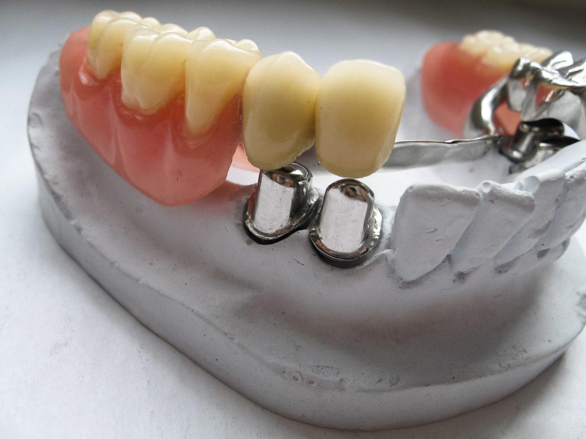 proteza stomatologiczna gdynia proteza szkieletowa-bezklamrowa gdynia cmimed